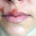 Герпетична інфекція: класифікація, симптоми, лікування