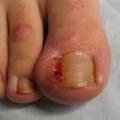 Народне лікування врослого нігтя