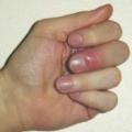 Панарицій пальця лікування народне