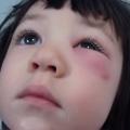 У дитини опухло верхню повіку: що робити?